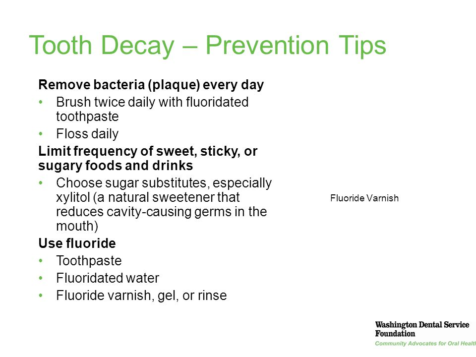 Tooth Decay – Prevention Tips