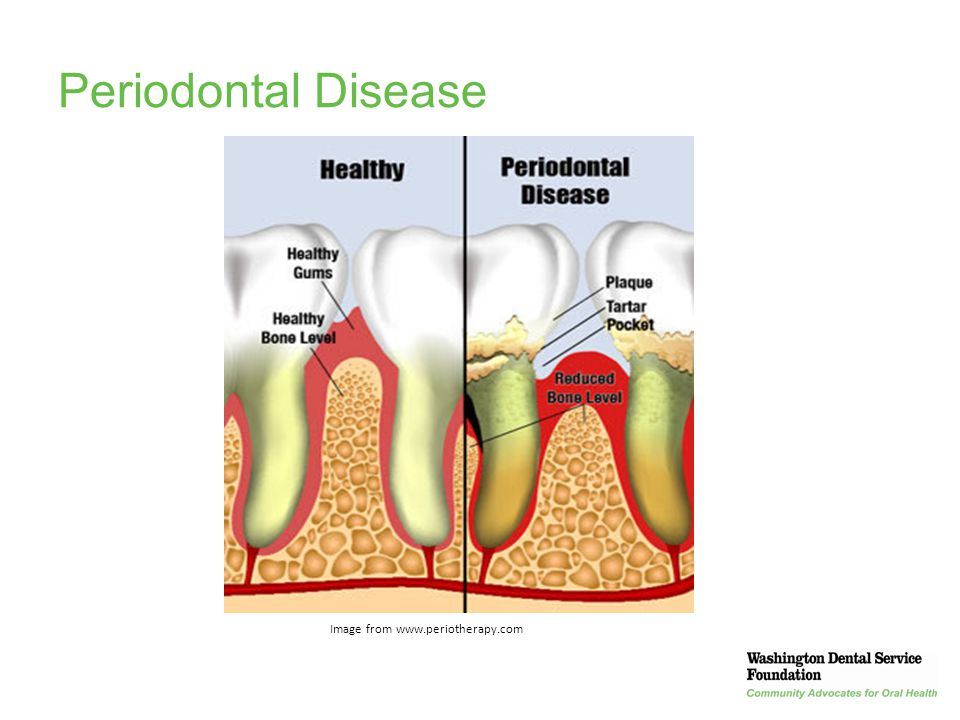 Periodontal Disease Image from www.periotherapy.com