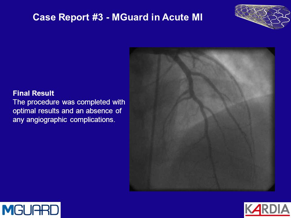 Case Report #3 - MGuard in Acute MI