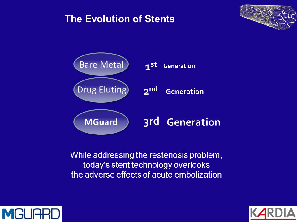 The Evolution of Stents