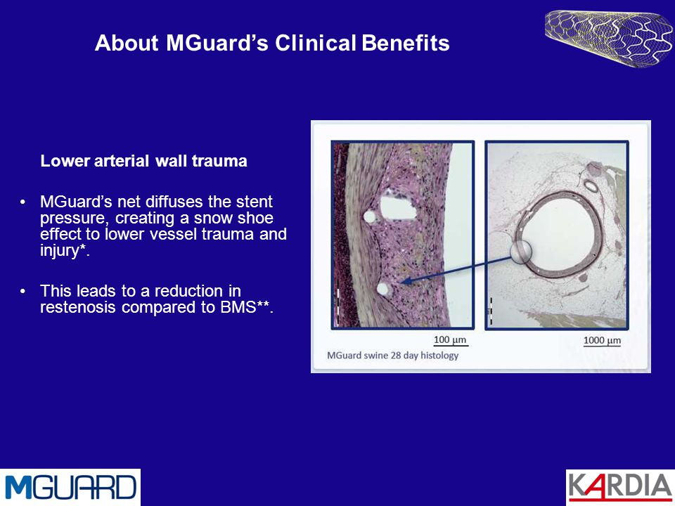 About MGuard's Clinical Benefits
