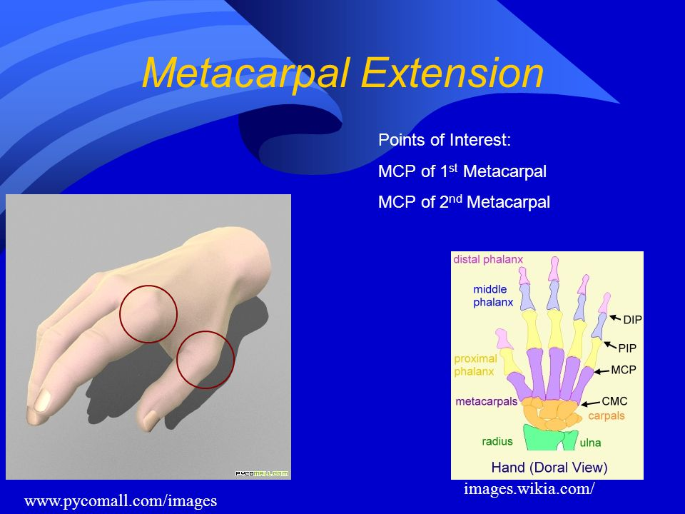 Metacarpal Extension Points of Interest: MCP of 1st Metacarpal