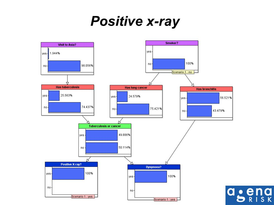 Positive x-ray