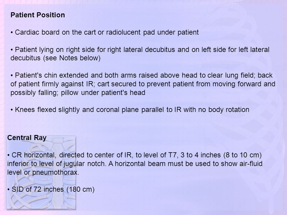 Patient Position • Cardiac board on the cart or radiolucent pad under patient.