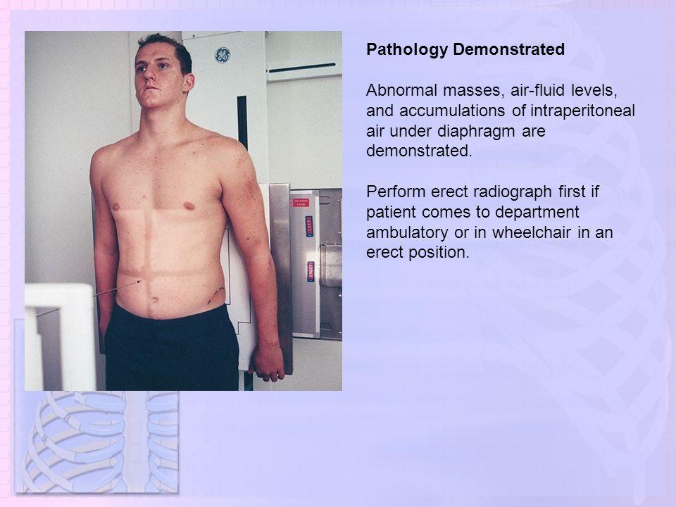 Pathology Demonstrated