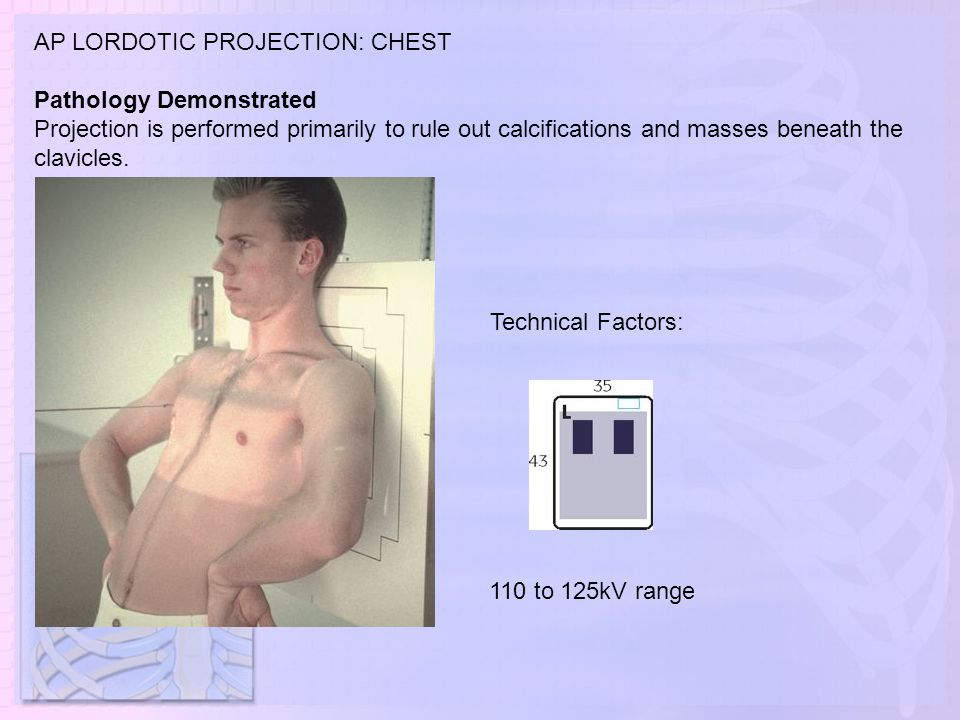 AP LORDOTIC PROJECTION: CHEST