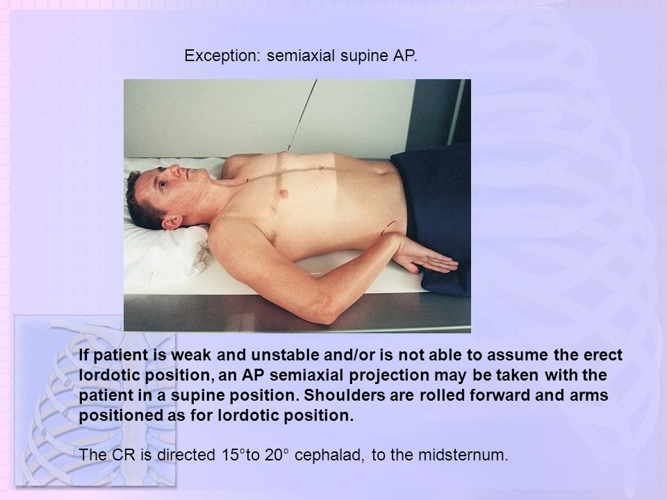 Exception: semiaxial supine AP.