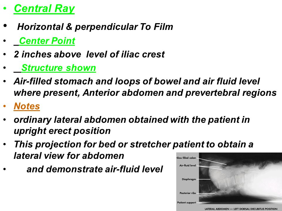 Horizontal & perpendicular To Film