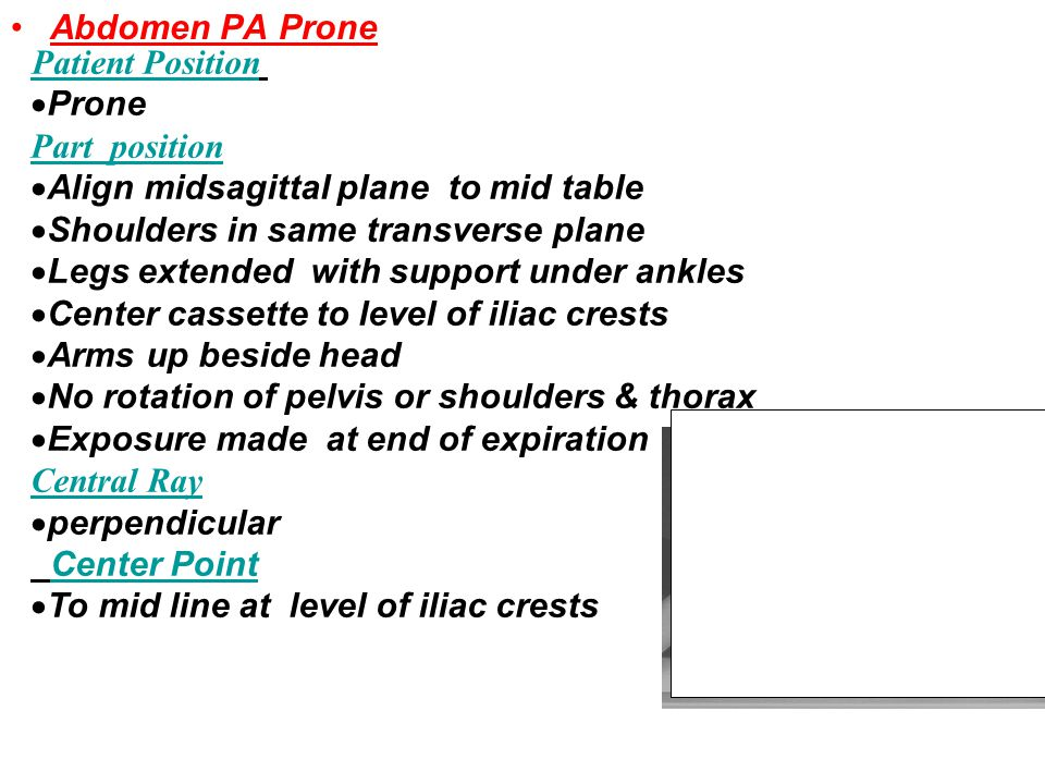 Abdomen PA Prone Patient Position. Prone. Part position. Align midsagittal plane to mid table.