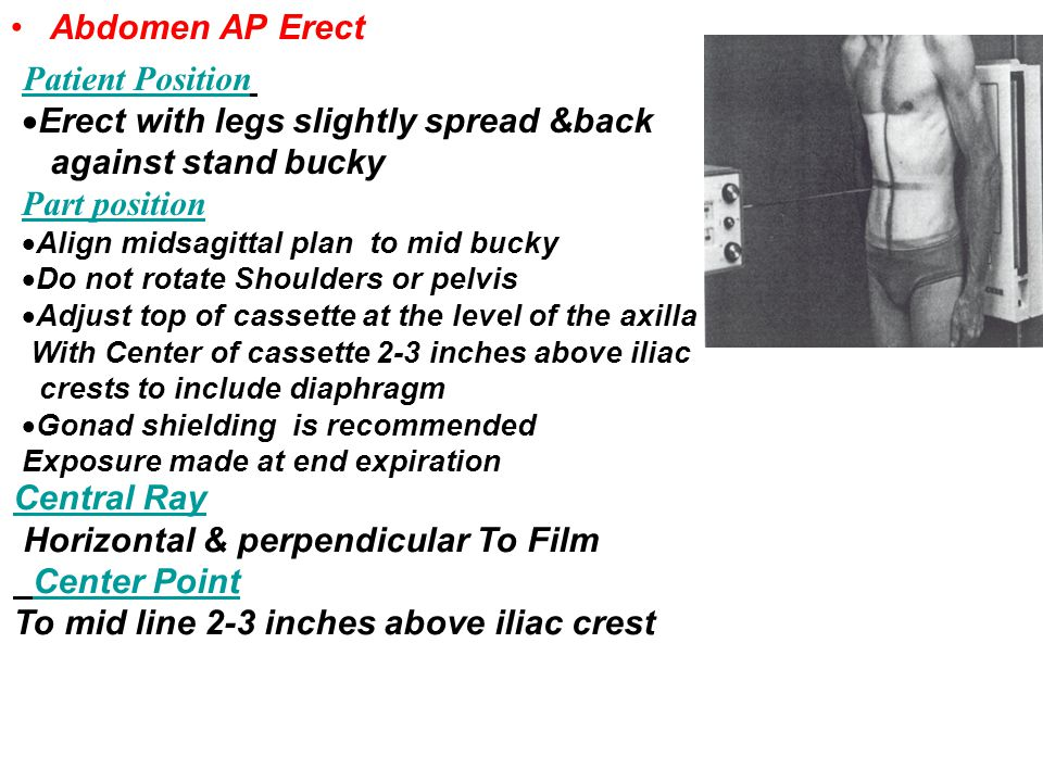 Erect with legs slightly spread &back against stand bucky
