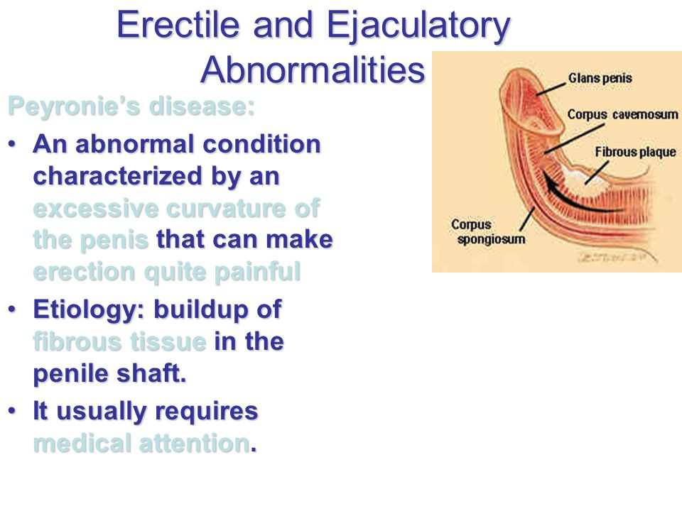 Erectile and Ejaculatory Abnormalities