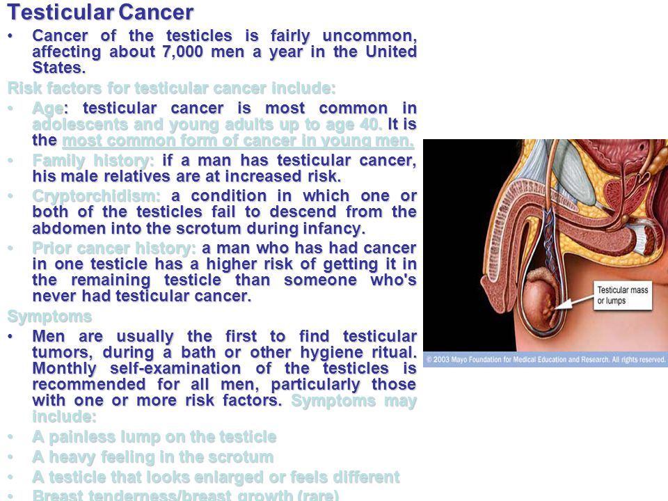 Testicular Cancer Cancer of the testicles is fairly uncommon, affecting about 7,000 men a year in the United States.