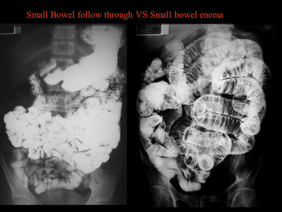 Small Bowel follow through VS Small bowel enema