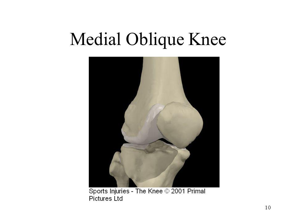 Medial Oblique Knee