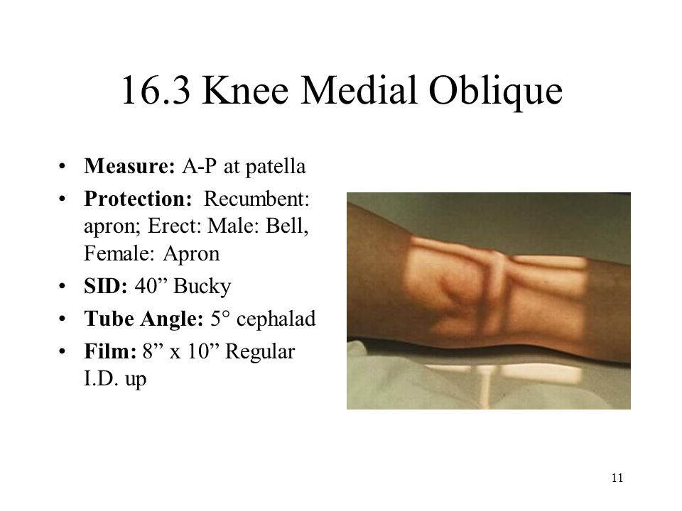 16.3 Knee Medial Oblique Measure: A-P at patella