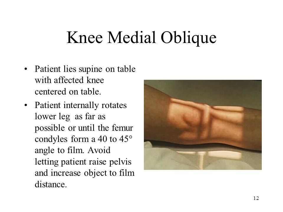 Knee Medial Oblique Patient lies supine on table with affected knee centered on table.