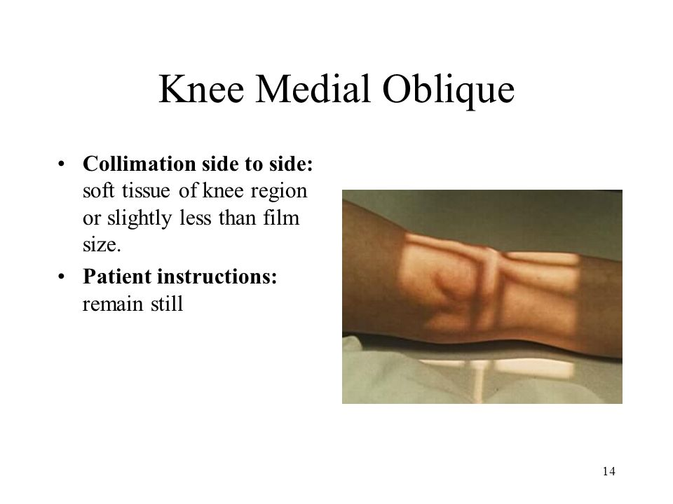 Knee Medial Oblique Collimation side to side: soft tissue of knee region or slightly less than film size.