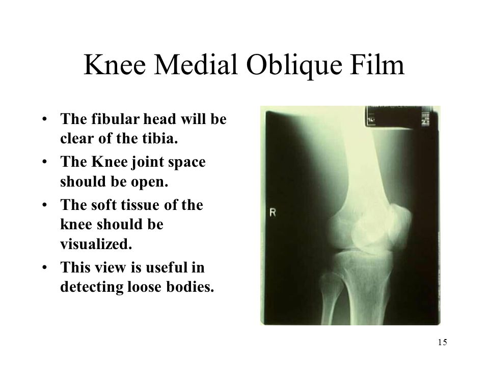 Knee Medial Oblique Film