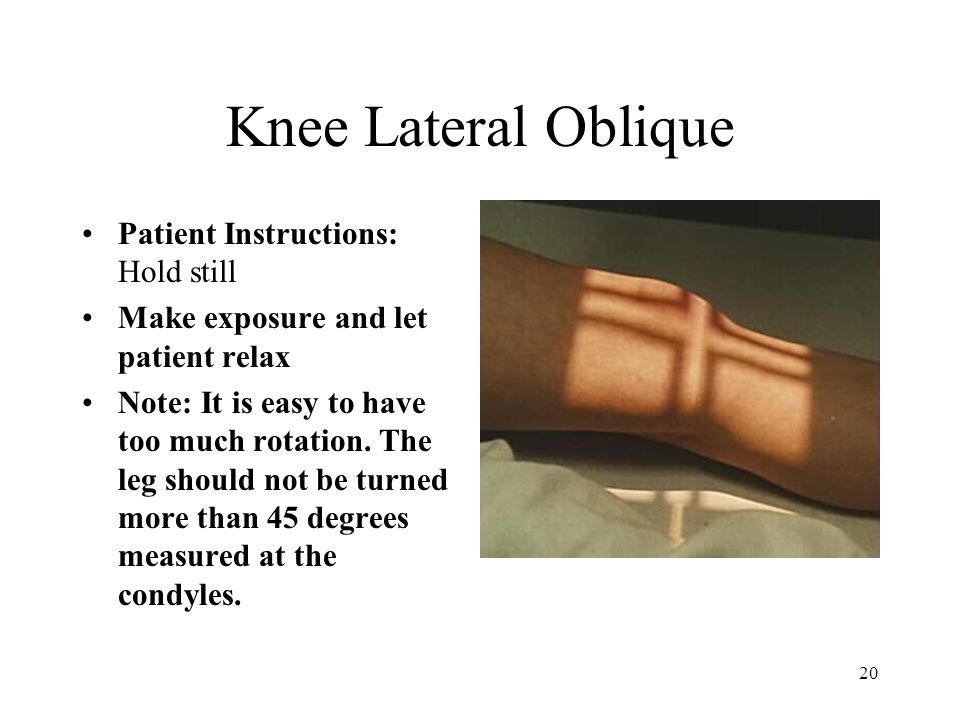 Knee Lateral Oblique Patient Instructions: Hold still