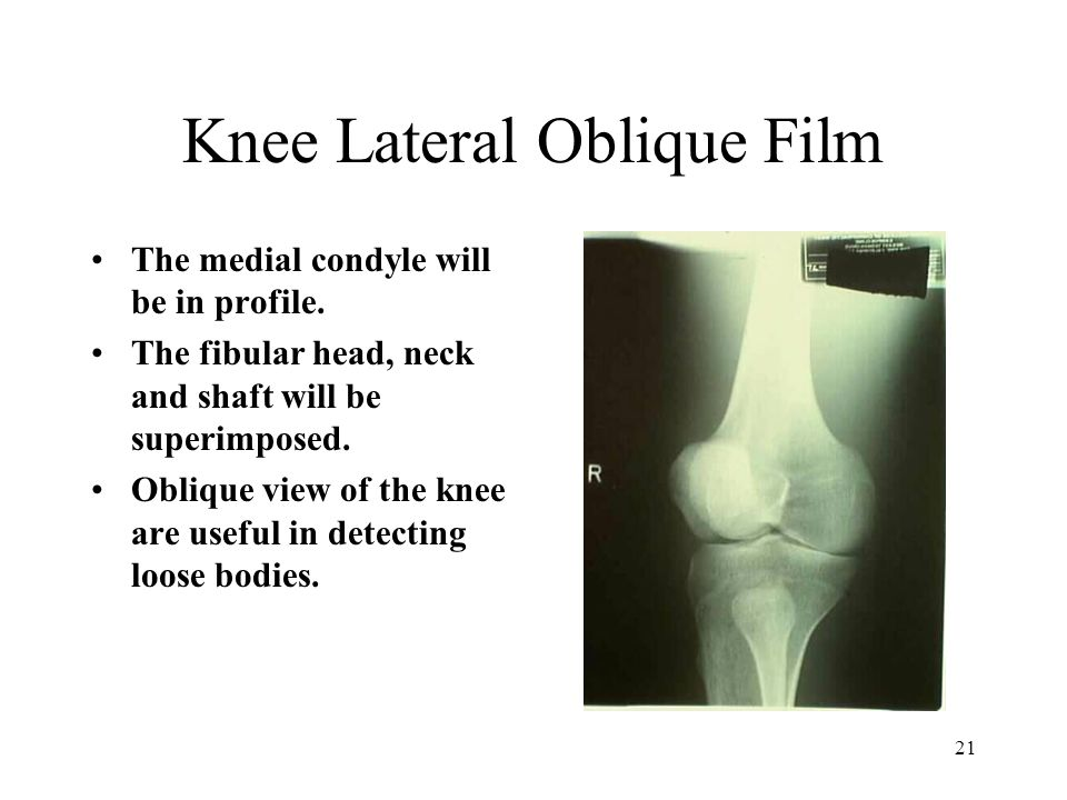 Knee Lateral Oblique Film