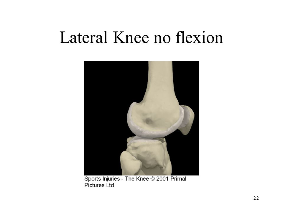 Lateral Knee no flexion