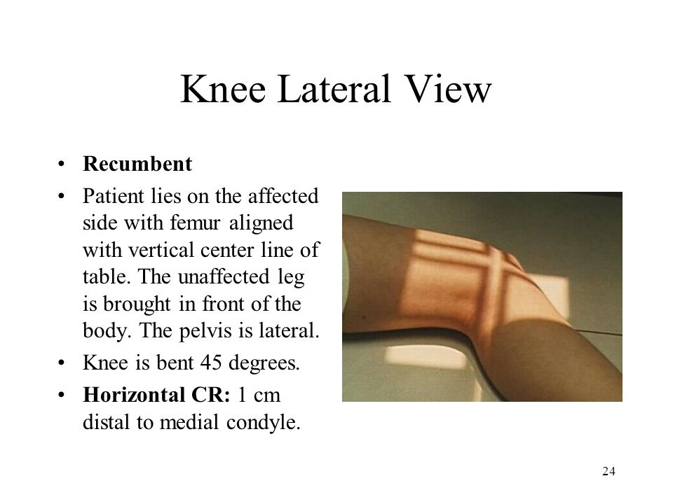 Knee Lateral View Recumbent