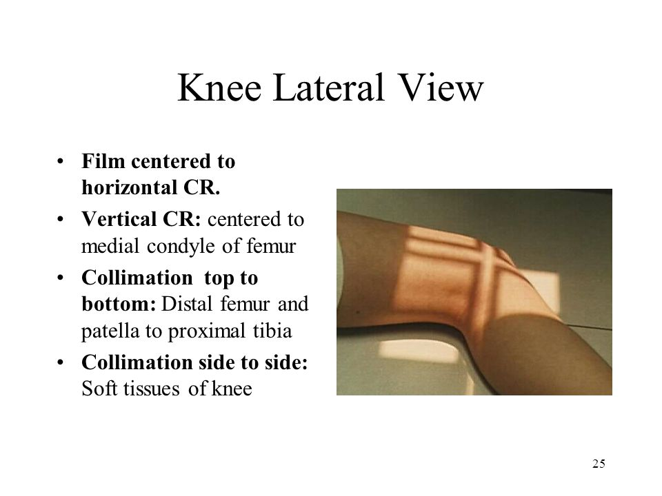 Knee Lateral View Film centered to horizontal CR.