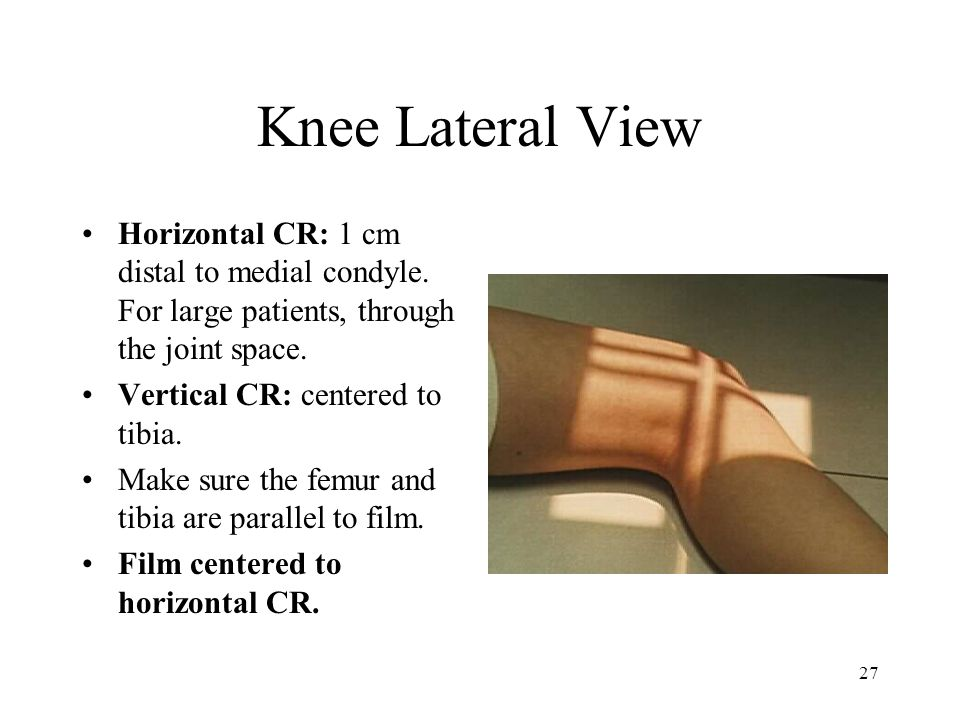 Knee Lateral View Horizontal CR: 1 cm distal to medial condyle. For large patients, through the joint space.