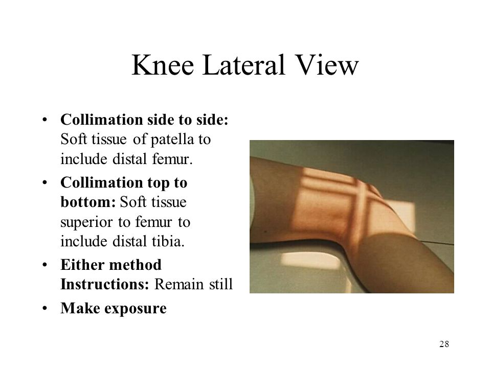 Knee Lateral View Collimation side to side: Soft tissue of patella to include distal femur.