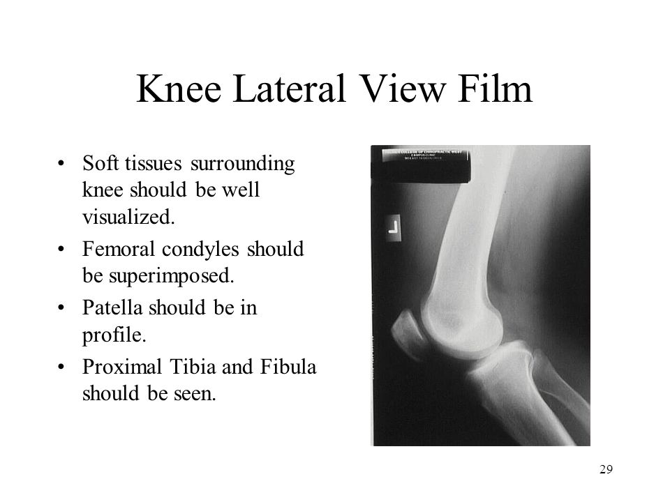 Knee Lateral View Film Soft tissues surrounding knee should be well visualized. Femoral condyles should be superimposed.