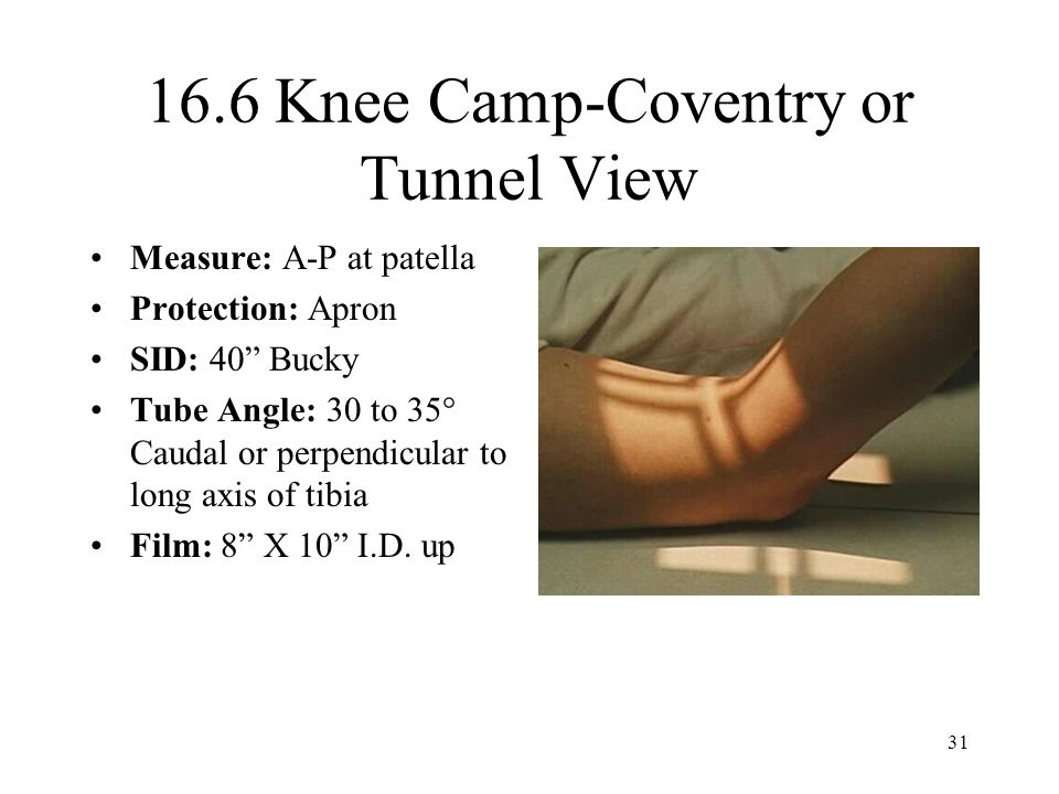 16.6 Knee Camp-Coventry or Tunnel View