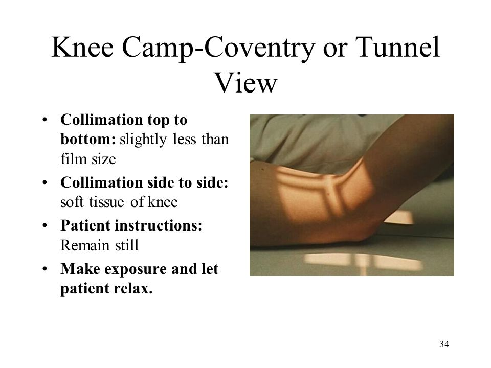 Knee Camp-Coventry or Tunnel View