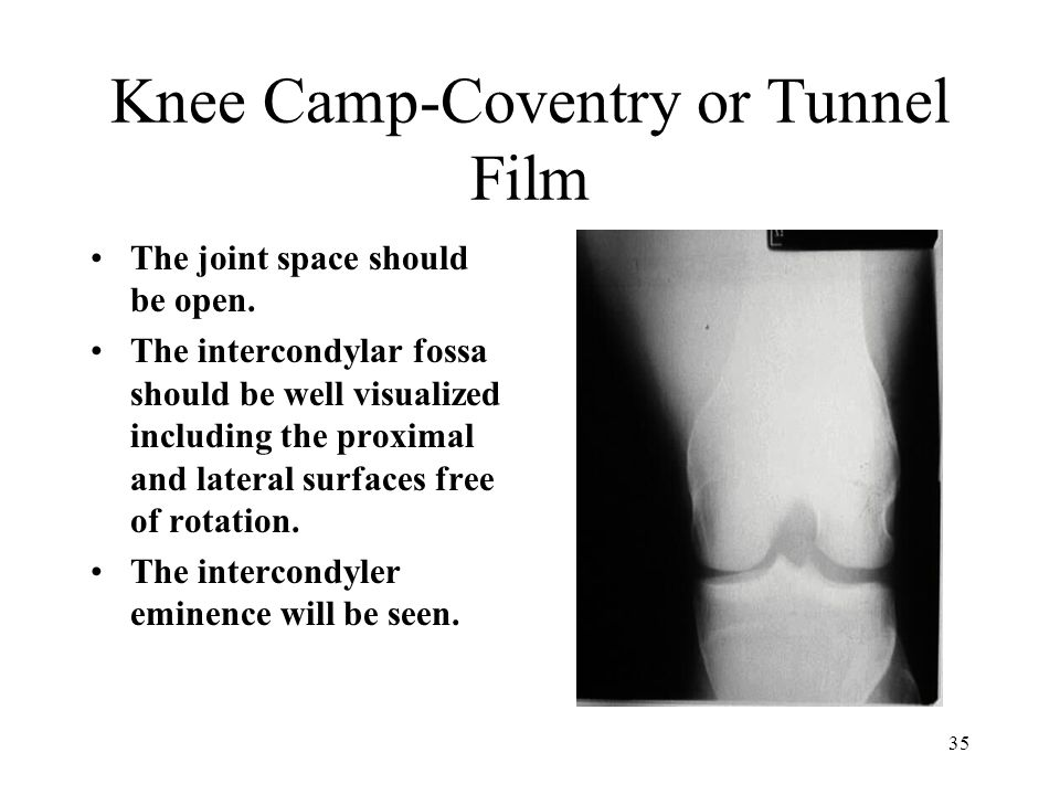 Knee Camp-Coventry or Tunnel Film