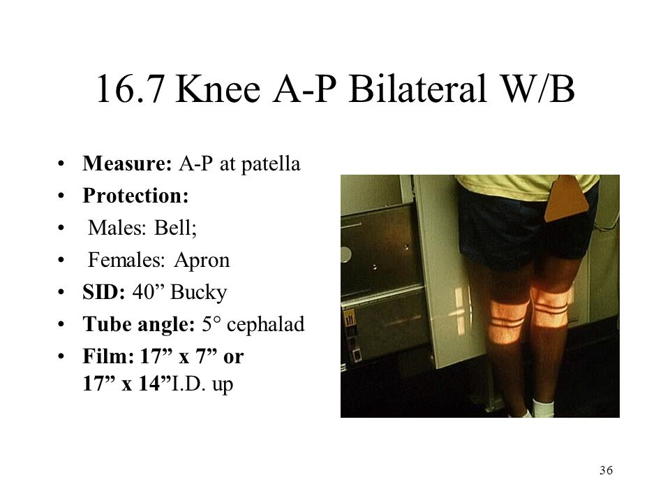 16.7 Knee A-P Bilateral W/B Measure: A-P at patella Protection: