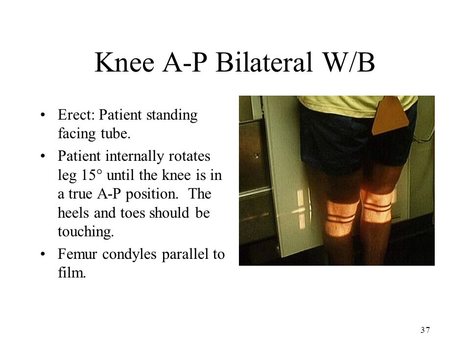 Knee A-P Bilateral W/B Erect: Patient standing facing tube.