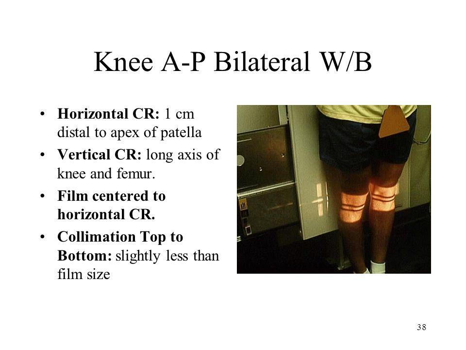 Knee A-P Bilateral W/B Horizontal CR: 1 cm distal to apex of patella