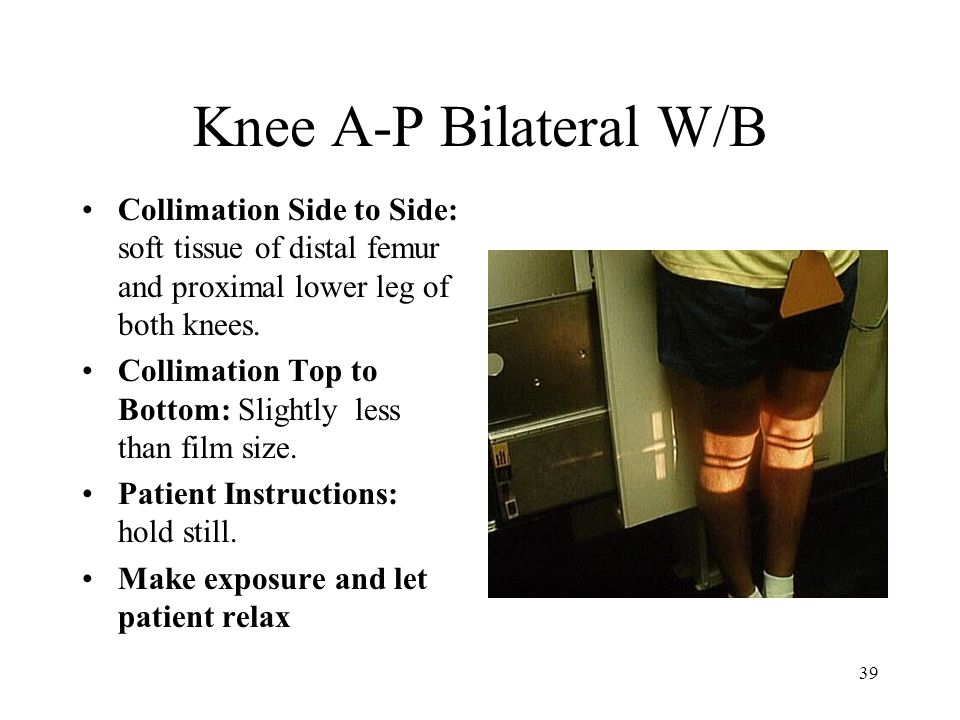 Knee A-P Bilateral W/B Collimation Side to Side: soft tissue of distal femur and proximal lower leg of both knees.