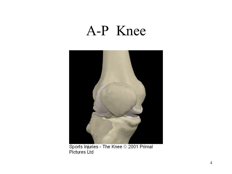 A-P Knee