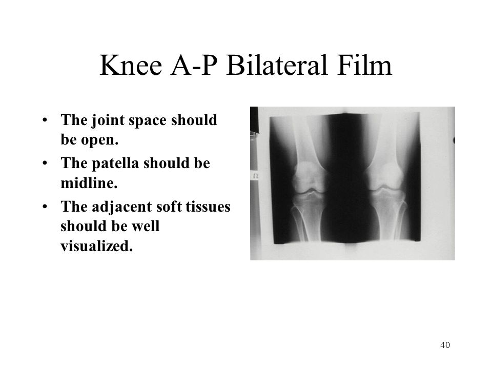 Knee A-P Bilateral Film