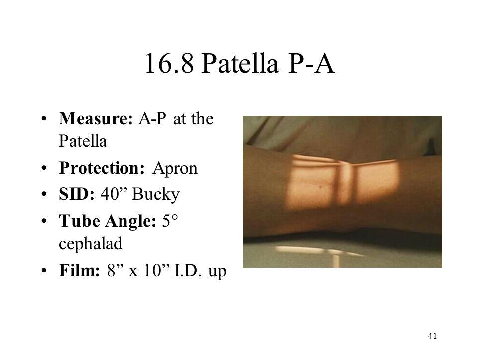 16.8 Patella P-A Measure: A-P at the Patella Protection: Apron