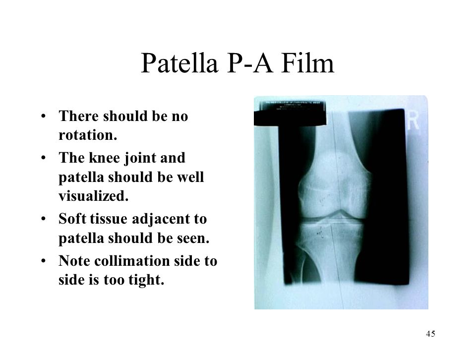 Patella P-A Film There should be no rotation.