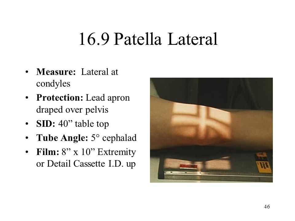 16.9 Patella Lateral Measure: Lateral at condyles