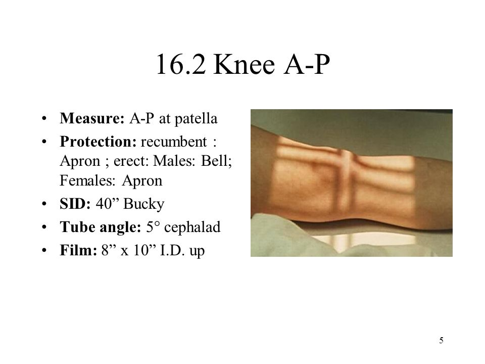 16.2 Knee A-P Measure: A-P at patella