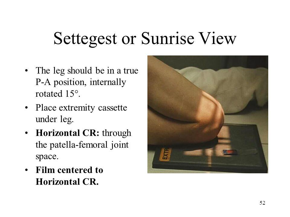 Settegest or Sunrise View