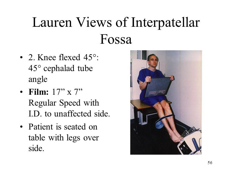 Lauren Views of Interpatellar Fossa