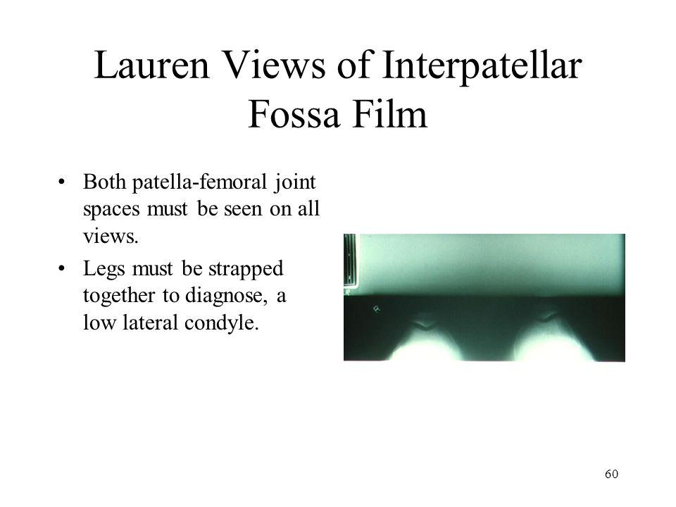 Lauren Views of Interpatellar Fossa Film