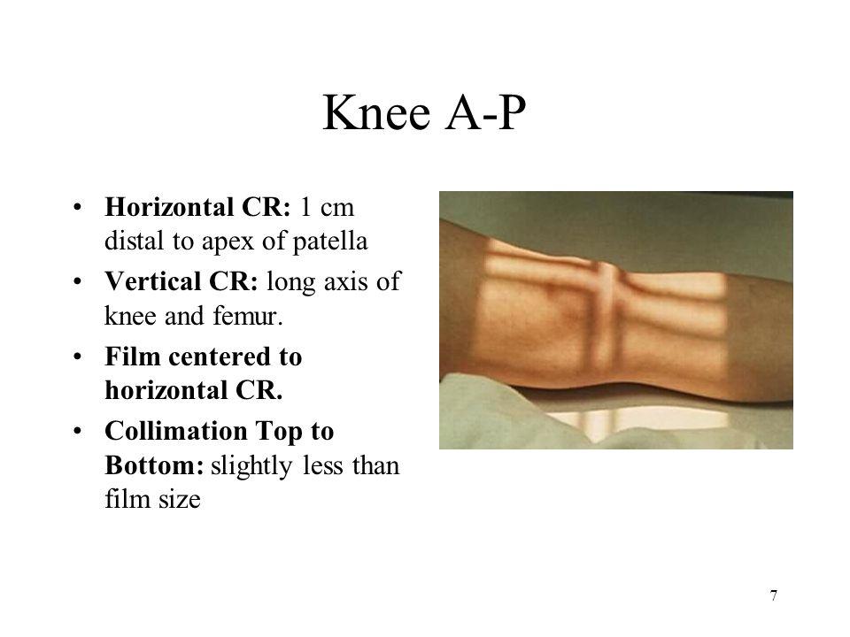 Knee A-P Horizontal CR: 1 cm distal to apex of patella
