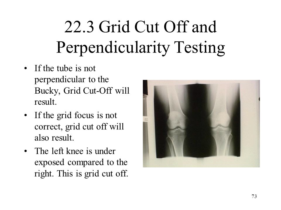 22.3 Grid Cut Off and Perpendicularity Testing