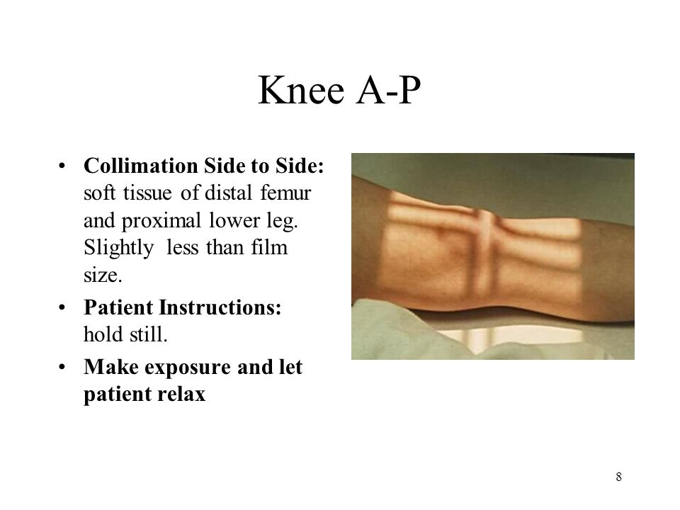 Knee A-P Collimation Side to Side: soft tissue of distal femur and proximal lower leg. Slightly less than film size.