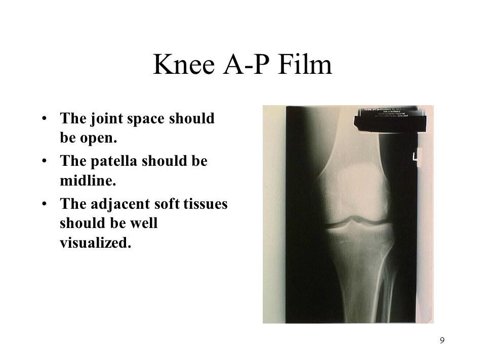 Knee A-P Film The joint space should be open.